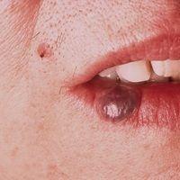 Phlebektasie (Venous lake auch Lippenrandangiom): Symptomlose, weiche bläuliche, komplett exprimi...