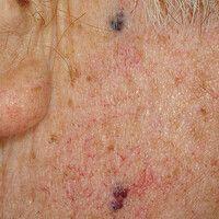 Phlebektasie. Kleine, geschlängelte Gefäßerweiterungen am Hals eines 70-jährigen Patienten. Extre...
