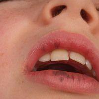 Peutz-Jeghers-Syndrom. Seit der frühesten Kindheit bestehende, schwarzbraune, spritzerartige brau...