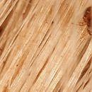Pediculosis (Übersicht): Kopflaus zwischen Haarschäften.