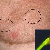 Pediculosis corporis: multiple kleinste punktförmige Ektoparasiten; befallene Arealeeingekreist....