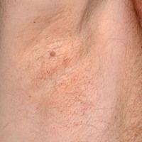 Pediculosis corporis: deutlich erkennbare, kleinste punktförmige Ektoparasiten. S. folgende Abbil...
