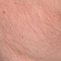 Pediculosis corporis: Detailvergrößerung: zahlreiche als dunkle Punkte erkennbare Ektoparasiten, ...