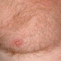 Pediculosis corporis: multiple kleinste punktförmige Ektoparasiten. S. folgende Abbildung. Mäßig...
