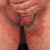 Pemphigus vegetans: chronische verruköse Wucherung im Bereich der Leisten und medialen Oberschenk...