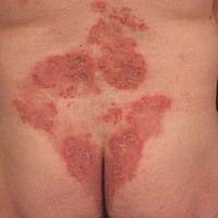 Pemphigus vegetans: seit mehreren Jahren bekannter Pemphigus vulgaris. In den letzten Monaten zun...