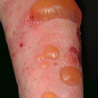 Pemphigoid bullöses: pralle subepitheliale Blasen, die der Haut halbkugelig aufsitzen. Flächenhaf...