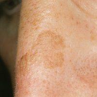 Lentigo simplex: scharf begrenzter, hellbraun pigmentierter Fleck an lichtexponierter Stelle auf ...