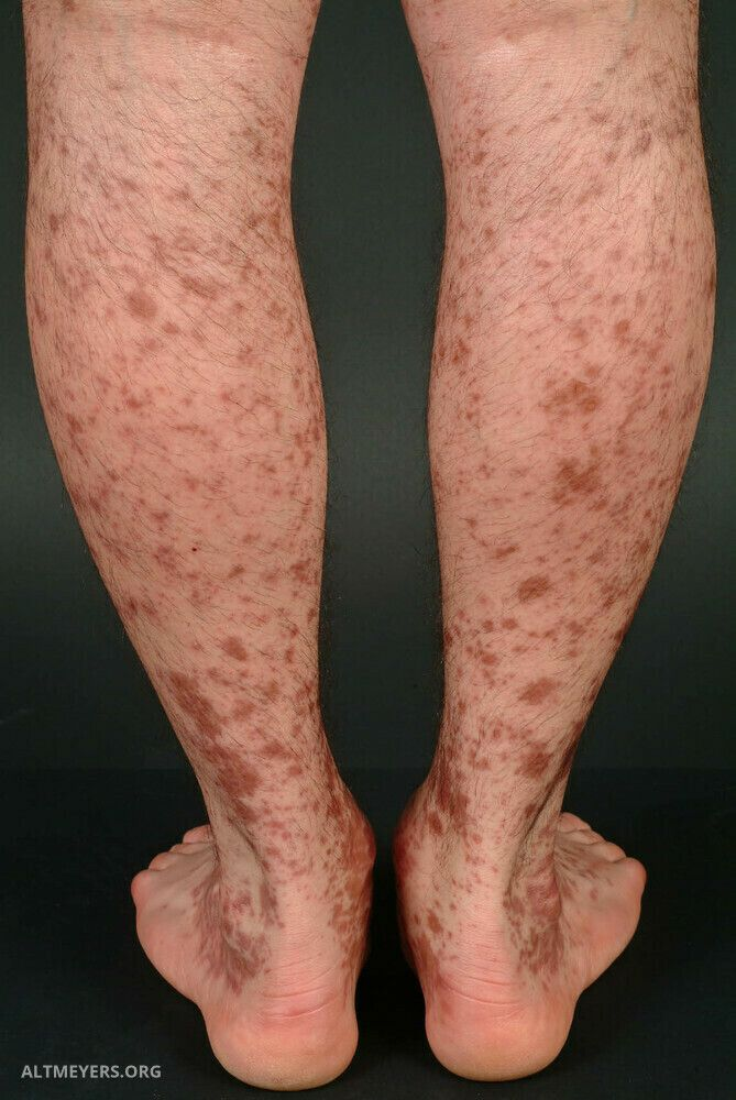Fuß petechien Beinarterienverschluss: Ursache,