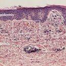 Purpura pigmentosa progressiva: Dermis leicht ödematös aufgelockert. Vertikaler Pfeil bezeichnet ...