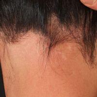 Alopecia areata vom Typ der Ophiasis: Lokalisation des Alopezieherdes Herdes am Haaransatz im Nac...