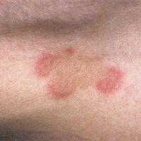 Churg-Strauss-Syndrom. Umschriebene, randständig rote, im Zentrum braun gelbe (hier Beginn der In...