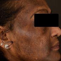 Chloasma/Melasmabei einer35 Jahre alten Patientin. Großfllächige unscharf begrenzte Hyperpigmen...