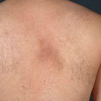 Notalgia paraesthetica: seit mehreren Monatenbekannte, intervallartig juckende auch brennende, u...