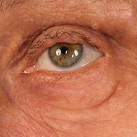 Neurofibromatose periphere:Lisch Knötchen - sptizerartige braune Flecken im Bereich der Iris