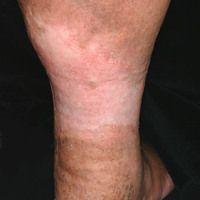 Dermatoliposklerose. 64-jähriger Patientin mit bekannter CVI. Seit Jahren zunehmende Verhärtung ...