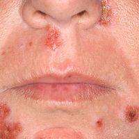 Impetigo contagiosa: multiple, artifiziell unterhaltene, nässende und krustige Plaques.