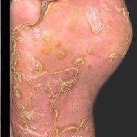 Keratoderma blennorrhagicum: Zirzinäre hyperkeratotische, teils pustulöse bzw. erosive Herde.Die...