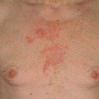 Ekzemseborrhoisches.58 Jahre alter Patient mit neg. Eigen- u. Familienanamnese für Psoriasis. S...