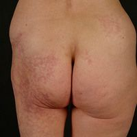 Cutis marmorata teleangiectatica congenita: seit Geburt vorhandene, unilaterale, verstärkte retik...