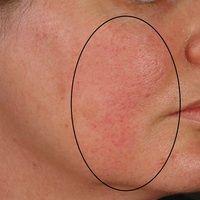 Demodex-Follikulitis: chronische beidseitige follikuläre Dermatitis mit flächiger Rötung. Vorbeka...