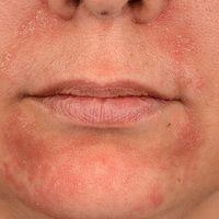 Periorale Dermatitis: seit Monaten persitierende, therapieresistente Dermatitis. Intermittierende...