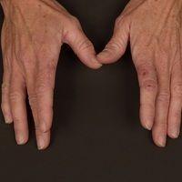 Porphyria cutana tarda: diskreter Befund mit der sich die Erkrankung anfänglich darstellt. Nach b...