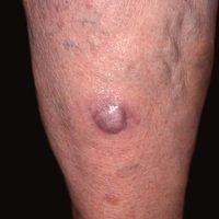 Merkelzell-Karzinom: schnell wachsender nicht-symptomatischer Knoten, bei einer 73 Jahre alten Pa...