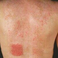 Pemphigus erythematosus (Zustand nach UV-Provokation): seit etwa2 Jahren rezidivierende, symmetr...