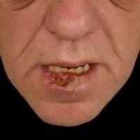 Lippenkarzinom: breit aufsitzende,feste, schmerzlose,warzenartige , erodierte und ulzerierte Pl...