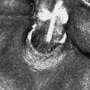 Keratosis follicularis (Laserscanning Mikroskopie) -Erklärung in der nachfolgenden Abbildung (Fra...