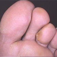 Epidermolysis bullosa simplex, Weber-Cockayne. Akute, nach 2-stündigem Fußmarsch aufgetretene, sc...