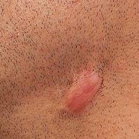 Keloid: seit mehreren Monaten bestehendes zeitweise schmerzendes Narbenkeloid, nach Exzsion einer...