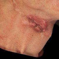 Hautmetastase: Metastase eines vorbekannten Plattenepithelkarzinoms des Mundbodens.