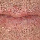 Chronische Cheilitis actinica bei schwerer aktinischen Elastose