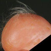 Alopecia areata:Akutebullöse kontaktallergischeDermatitis nach mehrfacher Behandlung der haarl...