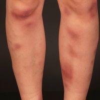 Erythema nodosum.Akute, multiple schmerzhafte indurierte Plaques und Knoten.