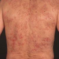 Erythema gyratum repens:Anuläre, auch girlandenförmige leicht infiltrierte, randbetonte rötlich...