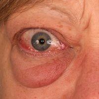 Morbus Baseow mit endokriner Orbitopathie.