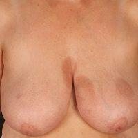 Atrophodermia idiopathica et progressiva:großflächige, wenig indurierte (einei Induation ist nic...