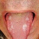 Lichen planus mucosae: wenig symptomatische, weiße Plaques bei exanthematischem Lichen planus de...
