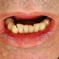 Lichen planus mucosae: diskreter Befall der Unterlippe. Keine subjektiven Symptome.