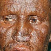 Alopecialepromatosa: kompletter Verlust der Augenbrauen, partieller Verlust der Wimpern bie Lepr...
