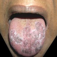 Lichen planus mucosae.44-jähriger, ansonsten gesunder äthiopischer Patient mit ausgedehntem Lic...