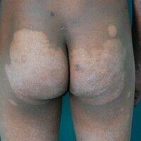 Lepra indeterminata(-I-). Großflächige hypopigmentierte, hypästhetische, kaum infiltrierte Plaqu...