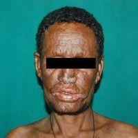 Lepra lepromatosa: seit vielen Jahren sich allmählich entwicklender Befund mit wenig entzündliche...