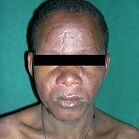 Lepra lepromatosa: Boderline Typ der Lepra lepromatosa. Inflammatorische Typ I-Reaktion (Leprarea...