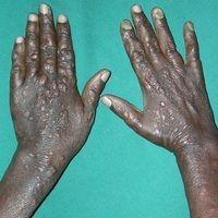 Lepra lepromatosa:fortgeschrittener Befund mit zahlreichen , nahezu symmetrisch verteilten, asy...