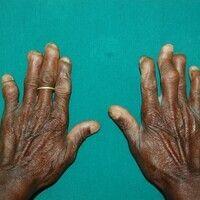 Lepra lepromatosa (-LL-)mit Atrophie, Versteifungen und Mutilationen der Finger. Auffällige Atro...
