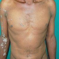 Lichen striatus:seit mehreren Monaten bestehender, den Blaschko-Linien folgender verruköser Lich...